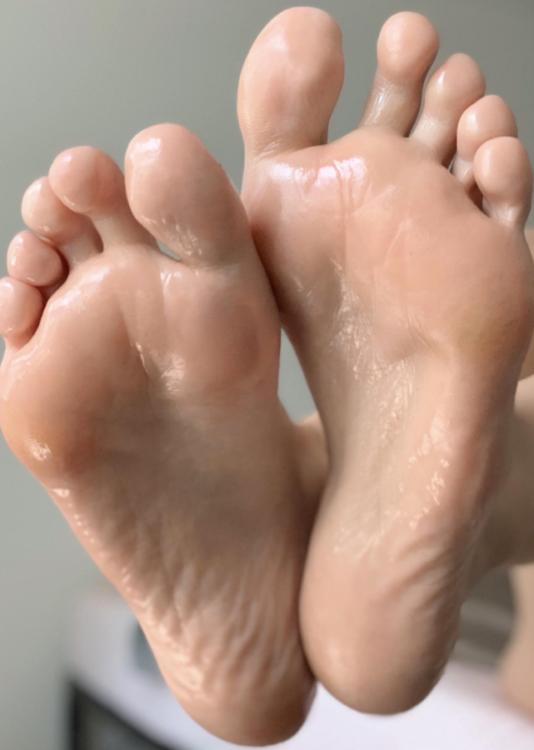 Plantar Hyperhidrosis sweating feet